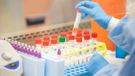 Κορονοϊός: Το πρώτο ρωσικό τεστ ταχείας διάγνωσης