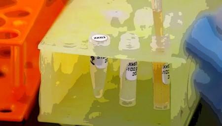 Κορονοϊός: Είναι αξιόπιστα τα τεστ αντισωμάτων;